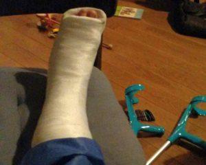 zlomená noha může být přínosem, když si uvědomíme proč